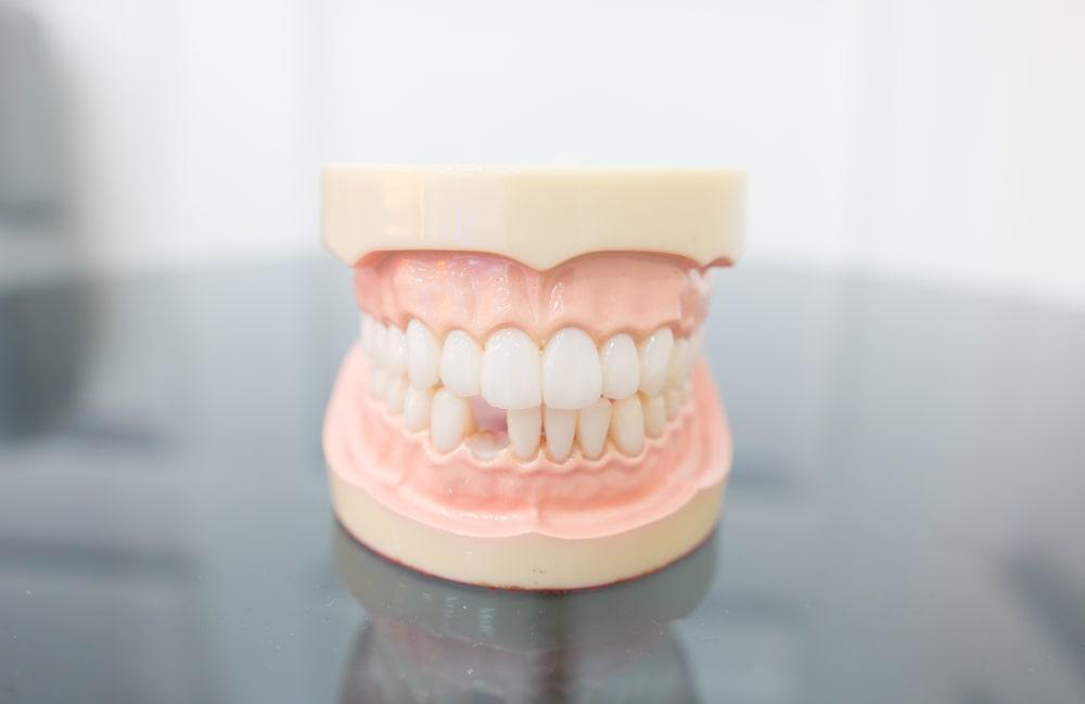 Remplacer des manquantes chez le dentiste